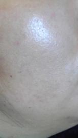 院内でも人気 ★シミ取り治療【フォトシルク・プラス】左頬の症例写真[アフター]