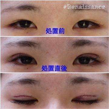 の目・二重の整形の症例写真