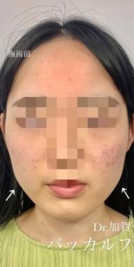 ルラ美容クリニックの輪郭・顎の整形の症例写真[ビフォー]