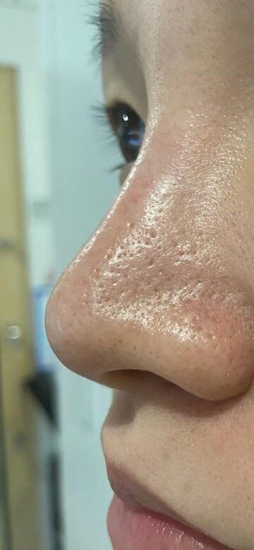たにまちクリニックのシミ治療(シミ取り)・肝斑・毛穴治療の症例写真[アフター]