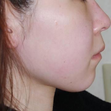 タウン形成外科クリニックのシワ・たるみ(照射系リフトアップ治療)の症例写真[ビフォー]