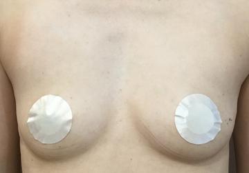 シンシアガーデンクリニックの豊胸手術(胸の整形)の症例写真[ビフォー]