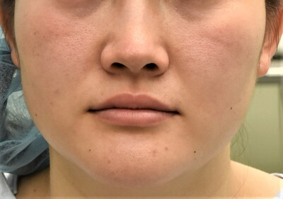 20代女性 顎骨切り症例の症例写真[ビフォー]