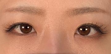 ウェンデルクリニックの目・二重の整形の症例写真[アフター]