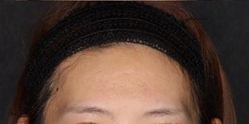 SELECT CLINIC(セレクトクリニック)のニキビ治療・ニキビ跡の治療の症例写真[アフター]