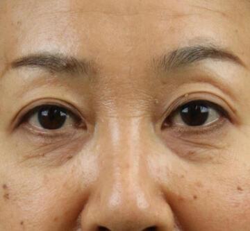 オザキクリニックの目元整形・クマ治療の症例写真[ビフォー]