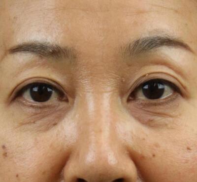 ヒアルロン酸注射(目の下)の症例写真[ビフォー]
