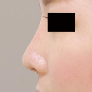 ドーズ美容外科の鼻の整形の症例写真[アフター]
