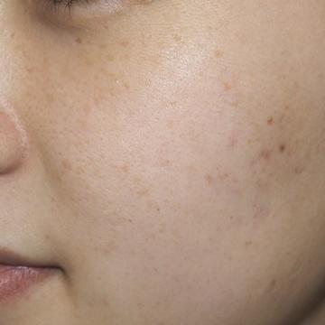 タウン形成外科クリニックのシミ治療(シミ取り)・肝斑・毛穴治療の症例写真[アフター]