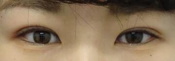みらいビューティークリニック和歌山の目・二重の整形の症例写真[アフター]
