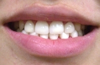 ザ・ホワイトデンタルクリニックの矯正歯科の症例写真[アフター]