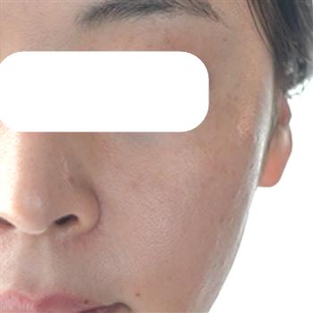 フォトIPL(ヴィーナスヴェルサ)+RFタイトニングの症例写真[アフター]