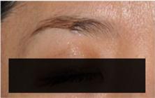 ブリスクリニックのホクロ除去・あざ治療・イボ治療の症例写真[アフター]