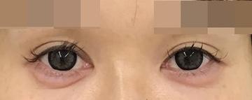 東郷美容形成外科 福岡の目元の整形、くま治療の症例写真[アフター]
