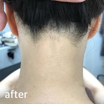 ゆきおかクリニックの医療レーザー脱毛の症例写真[アフター]