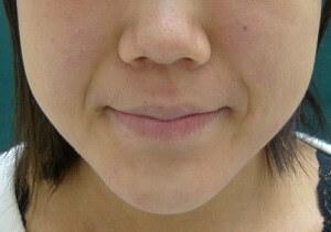 スキンコスメクリニックグループの顔のしわ・たるみの整形(リフトアップ手術)の症例写真[ビフォー]