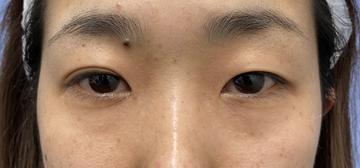 湘南美容クリニック 銀座院の目・二重整形の症例写真[ビフォー]