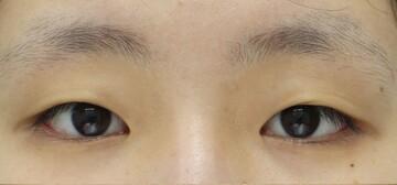 湘南美容クリニック大阪堺東院の目・二重の整形の症例写真[ビフォー]