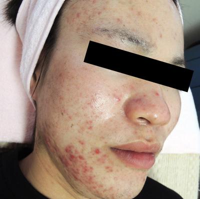 ニキビ治療:エンジェルピール、ジェネシスの症例写真[ビフォー]
