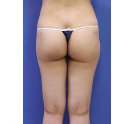 オザキクリニックLUXE新宿の脂肪吸引の症例写真[アフター]
