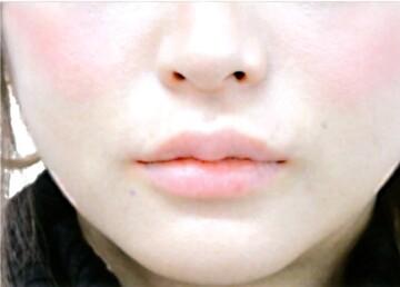 の口元・唇の整形の症例写真[アフター]