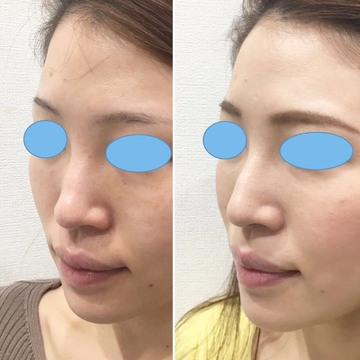 の鼻の整形の症例写真