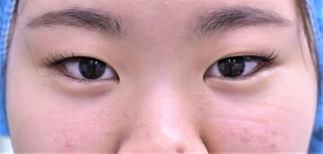 心斎橋コムロ美容外科クリニックの目・二重整形の症例写真[ビフォー]