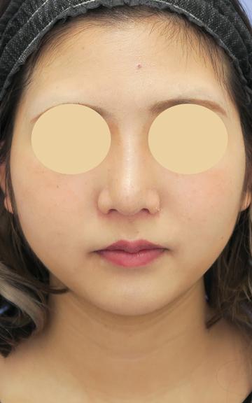 湘南美容クリニック 武蔵小杉院の鼻の整形の症例写真[アフター]