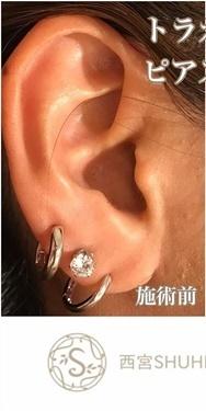 西宮SHUHEI美容クリニックのピアス穴あけの症例写真[ビフォー]