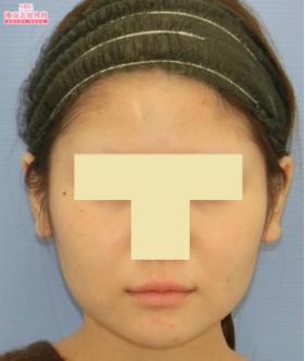 の顔の整形(輪郭・顎の整形)の症例写真[ビフォー]