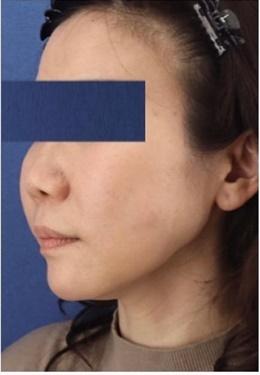 銀座長瀬クリニックの顔のしわ・たるみの整形の症例写真[アフター]