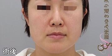 銀座みゆき通り美容外科大阪院のシミ治療(シミ取り)・肝斑・毛穴治療の症例写真[アフター]