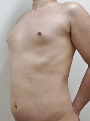 胸部・腹部の脂肪吸引[アフター]
