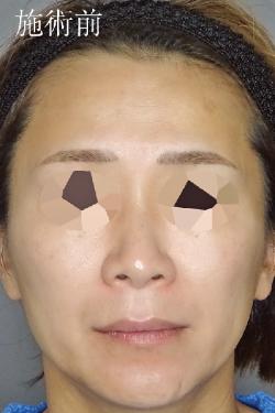 TCB東京中央美容外科 梅田大阪駅前院の顔のしわ・たるみの整形の症例写真[ビフォー]