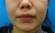 東京中央美容外科・美容皮膚科の顔のしわ・たるみの整形(リフトアップ手術)の症例写真[ビフォー]