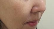 エルクリニックのシワ・たるみ(照射系リフトアップ治療)の症例写真[アフター]