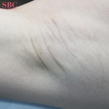 湘南美容クリニック 岡山院のわきが手術・多汗症治療の症例写真[アフター]