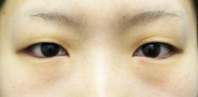 【二重埋没法】クイックコスメティーク・ダブル(1ヵ月後)の症例写真[ビフォー]