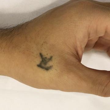 ローズマリークリニックのタトゥー除去(刺青・入れ墨を消す治療)の症例写真[ビフォー]