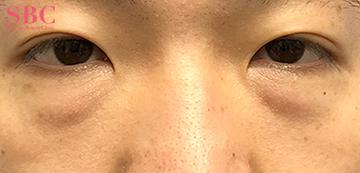 湘南美容クリニック 岡山院の目元の整形、くま治療の症例写真[ビフォー]