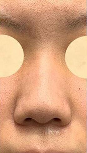 鼻尖形成、軟骨移植、鼻中隔延長、鼻柱下降、SBCプロテーゼの症例写真[ビフォー]