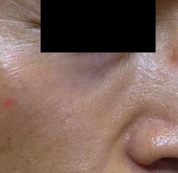 さやか美容クリニック・町田のほくろ除去・あざ治療・イボ治療の症例写真[アフター]
