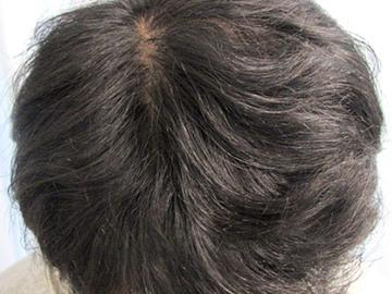 あやべクリニックの薄毛治療・AGA・発毛の症例写真[アフター]