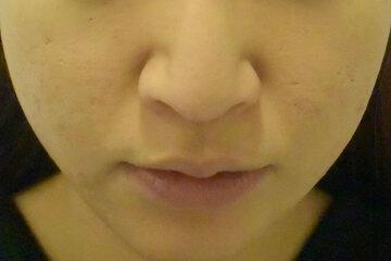 東京イセアクリニック 銀座院のニキビ治療・ニキビ跡の治療の症例写真[アフター]