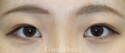 目頭切開(控えめ)術前・術後2か月・術後6か月の症例写真