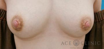 エースクリニックグループの乳首・乳輪の整形の症例写真[ビフォー]