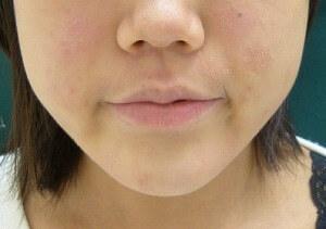 スキンコスメクリニックグループの顔のしわ・たるみの整形(リフトアップ手術)の症例写真[アフター]