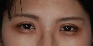 目白ポセンシアクリニックの症例写真[アフター]