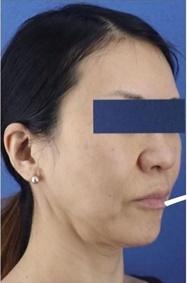 銀座長瀬クリニックの顔のしわ・たるみの整形の症例写真[ビフォー]