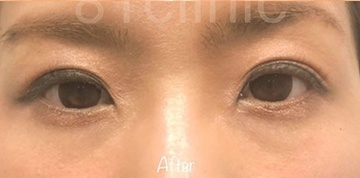 81clinicの目・二重の整形の症例写真[アフター]